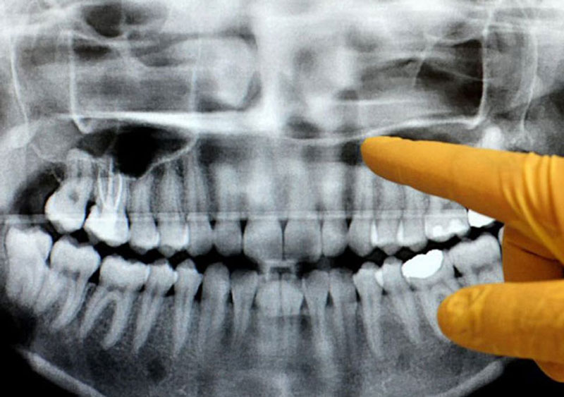 dental xray training course example